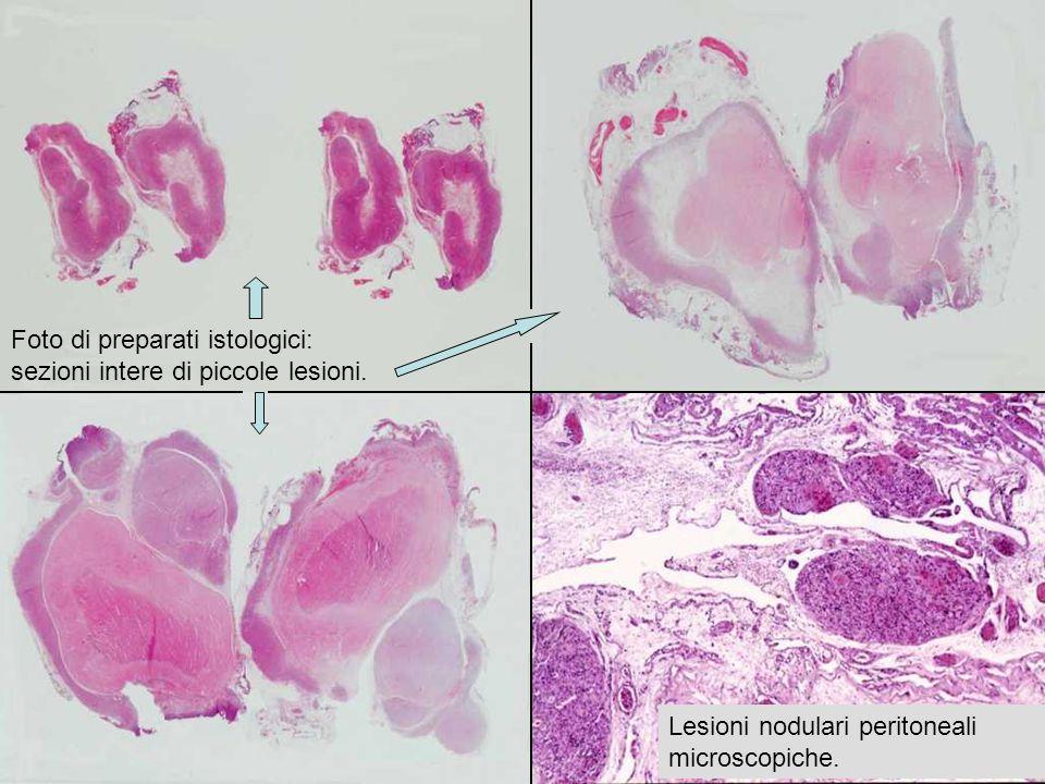 Foto di preparati istologici: sezioni intere di piccole lesioni. Lesioni nodulari peritoneali microscopiche.