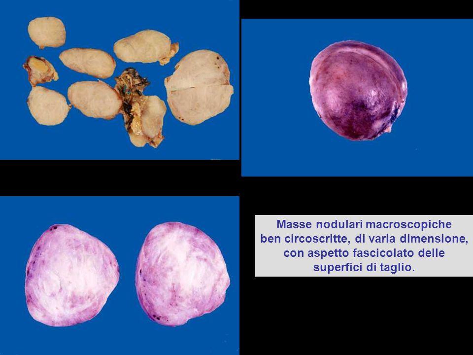 Masse nodulari macroscopiche ben circoscritte, di varia dimensione, con aspetto fascicolato delle superfici di taglio.