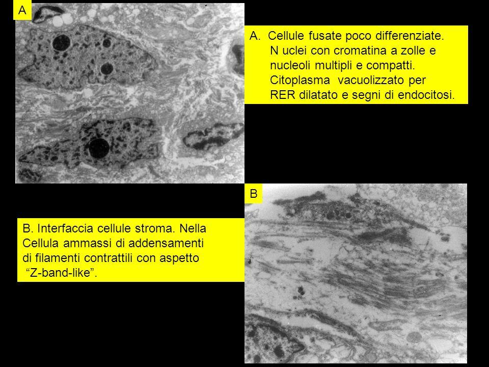 A B A.Cellule fusate poco differenziate. N uclei con cromatina a zolle e nucleoli multipli e compatti. Citoplasma vacuolizzato per RER dilatato e segn