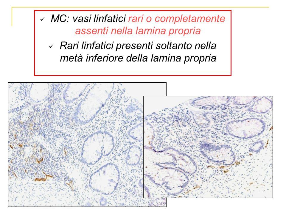 MC: vasi linfatici rari o completamente assenti nella lamina propria Rari linfatici presenti soltanto nella metà inferiore della lamina propria