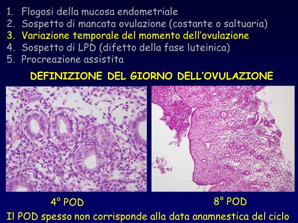 1.Flogosi della mucosa endometriale 2.Sospetto di mancata ovulazione (costante o saltuaria) 3.Variazione temporale del momento dellovulazione 4.Sospet
