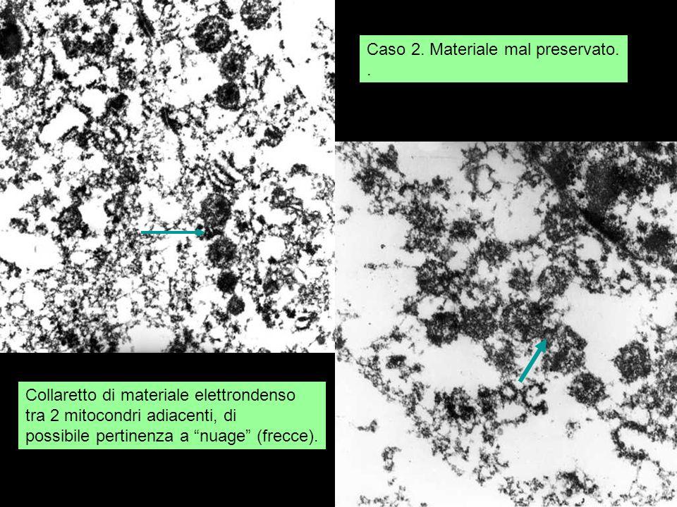 Caso 2. Materiale mal preservato.. Collaretto di materiale elettrondenso tra 2 mitocondri adiacenti, di possibile pertinenza a nuage (frecce).