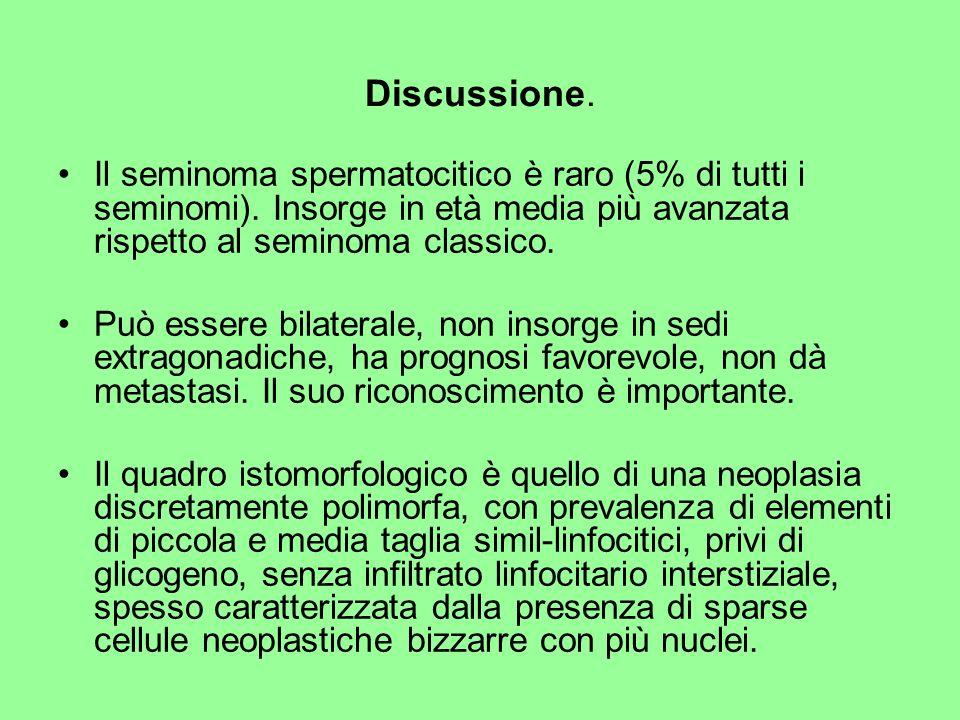 Il seminoma spermatocitico è raro (5% di tutti i seminomi). Insorge in età media più avanzata rispetto al seminoma classico. Può essere bilaterale, no