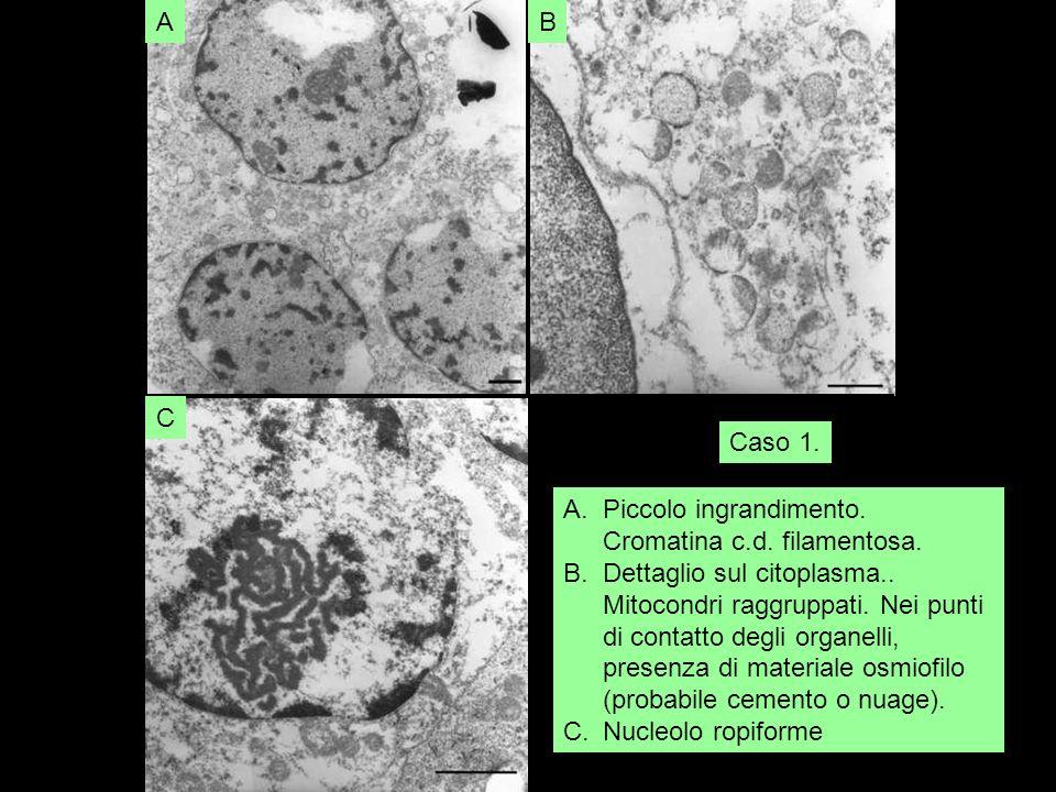 AB C A.Piccolo ingrandimento. Cromatina c.d. filamentosa. B.Dettaglio sul citoplasma.. Mitocondri raggruppati. Nei punti di contatto degli organelli,