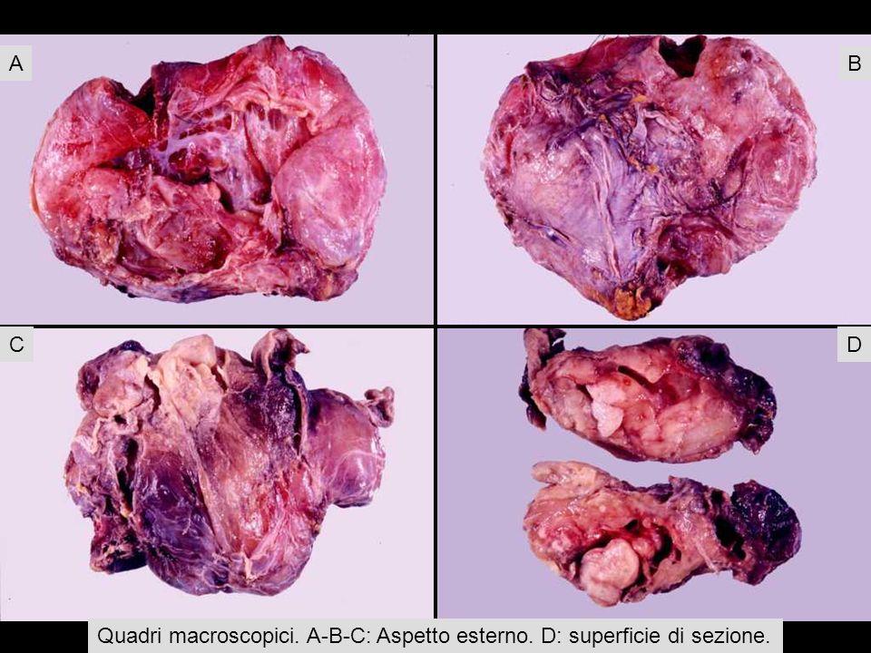 Quadri macroscopici. A-B-C: Aspetto esterno. D: superficie di sezione. AB CD