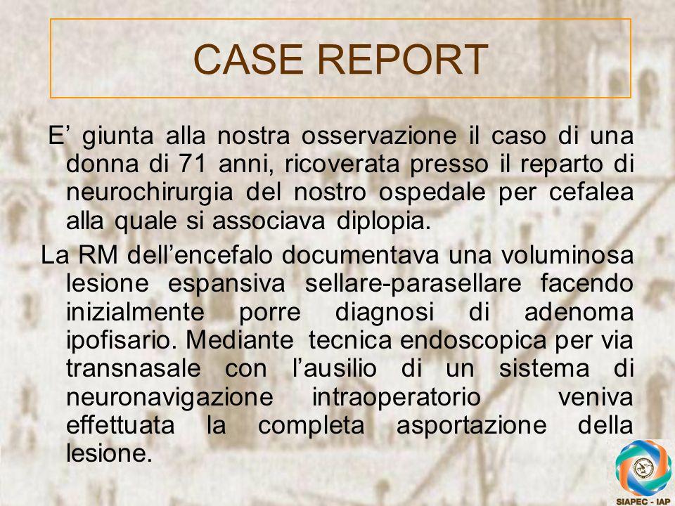 CASE REPORT E giunta alla nostra osservazione il caso di una donna di 71 anni, ricoverata presso il reparto di neurochirurgia del nostro ospedale per