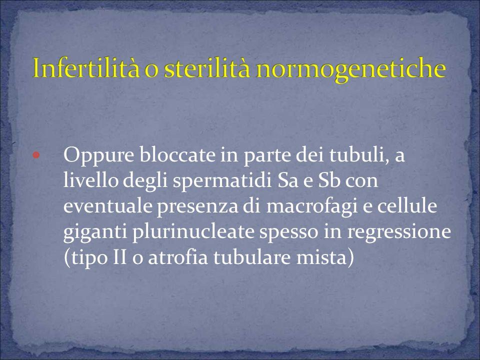Oppure bloccate in parte dei tubuli, a livello degli spermatidi Sa e Sb con eventuale presenza di macrofagi e cellule giganti plurinucleate spesso in regressione (tipo II o atrofia tubulare mista)