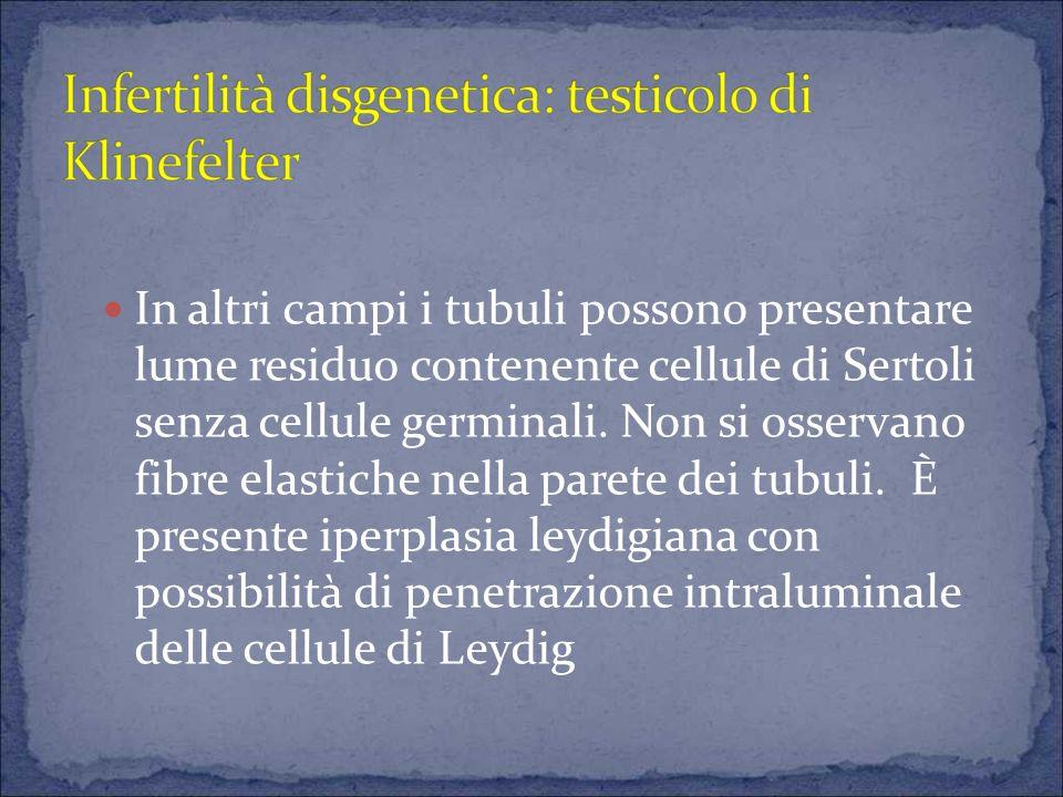 CARCINOMA IN SITU IN CORSO DI INFERTILITA O STERILITA A parte vanno considerati i rari casi di carcinoma in situ (UIGCN) (1 caso pari allo 0,45%) in testicolo sterile.