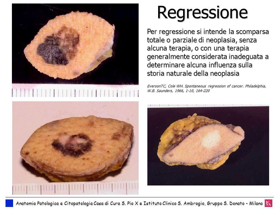 Regressione Per regressione si intende la scomparsa totale o parziale di neoplasia, senza alcuna terapia, o con una terapia generalmente considerata i