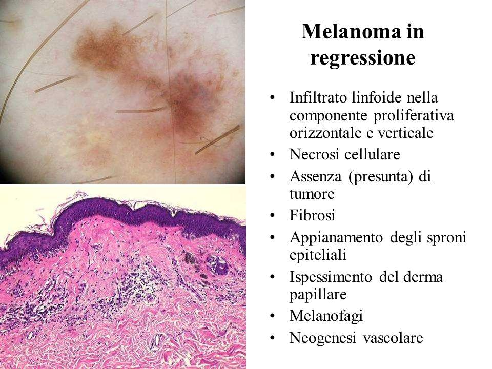 Melanoma in regressione Infiltrato linfoide nella componente proliferativa orizzontale e verticale Necrosi cellulare Assenza (presunta) di tumore Fibr
