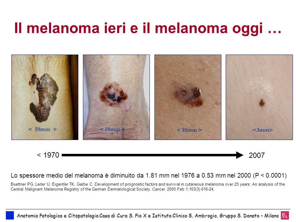 Il melanoma ieri e il melanoma oggi … < 1970 2007 Lo spessore medio del melanoma è diminuito da 1.81 mm nel 1976 a 0.53 mm nel 2000 (P < 0.0001) Buett