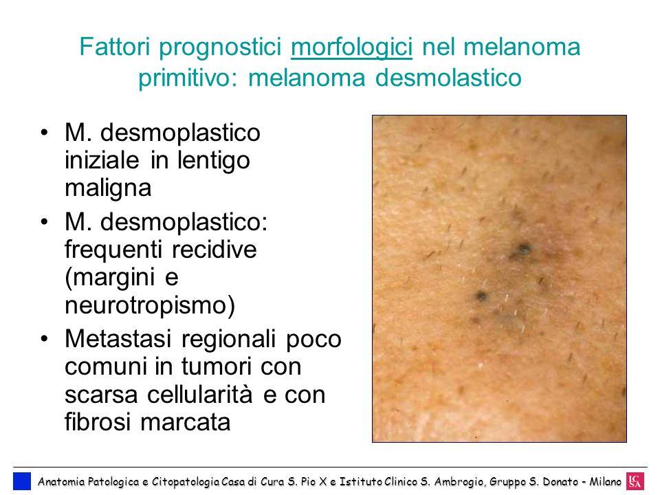 Fattori prognostici morfologici nel melanoma primitivo: melanoma desmolastico M. desmoplastico iniziale in lentigo maligna M. desmoplastico: frequenti
