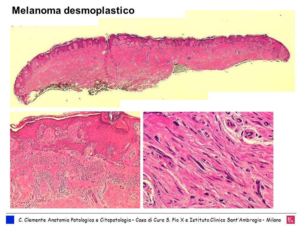 Melanoma desmoplastico C. Clemente Anatomia Patologica e Citopatologia – Casa di Cura S. Pio X e Istituto Clinico SantAmbrogio - Milano