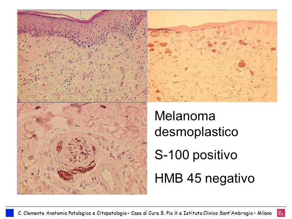 Melanoma desmoplastico S-100 positivo HMB 45 negativo C. Clemente Anatomia Patologica e Citopatologia – Casa di Cura S. Pio X e Istituto Clinico SantA