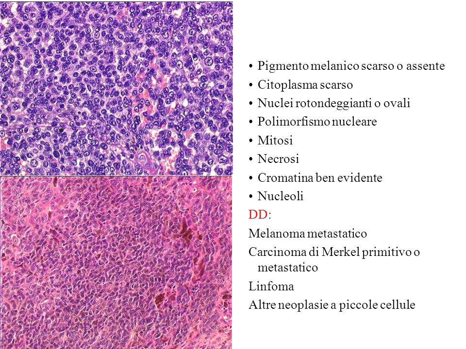 Pigmento melanico scarso o assente Citoplasma scarso Nuclei rotondeggianti o ovali Polimorfismo nucleare Mitosi Necrosi Cromatina ben evidente Nucleol