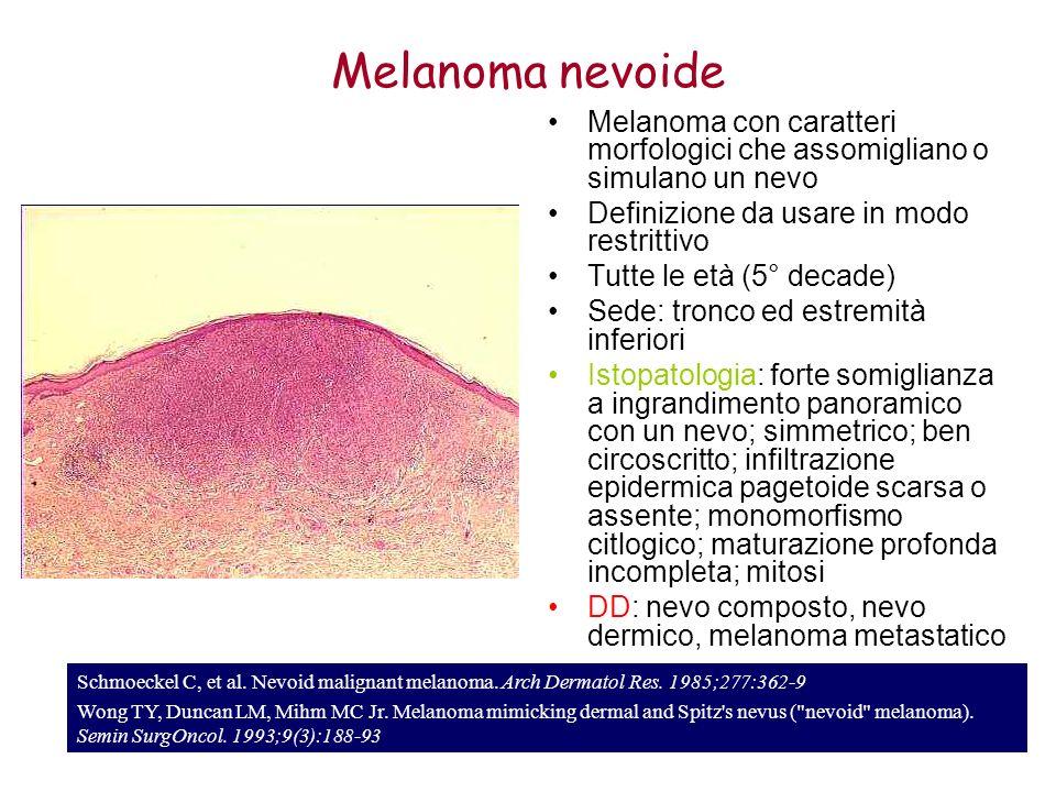 Schmoeckel C, et al. Nevoid malignant melanoma. Arch Dermatol Res. 1985;277:362-9 Wong TY, Duncan LM, Mihm MC Jr. Melanoma mimicking dermal and Spitz'