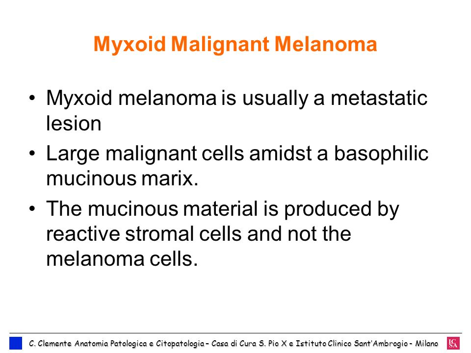 Myxoid Malignant Melanoma Myxoid melanoma is usually a metastatic lesion Large malignant cells amidst a basophilic mucinous marix. The mucinous materi