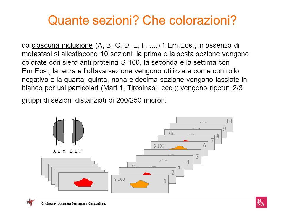 Quante sezioni? Che colorazioni? C. Clemente Anatomia Patologica e Citopatologia da ciascuna inclusione (A, B, C, D, E, F,....) 1 Em.Eos.; in assenza