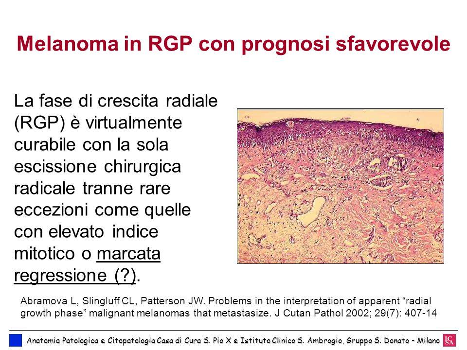Melanoma in RGP con prognosi sfavorevole La fase di crescita radiale (RGP) è virtualmente curabile con la sola escissione chirurgica radicale tranne r