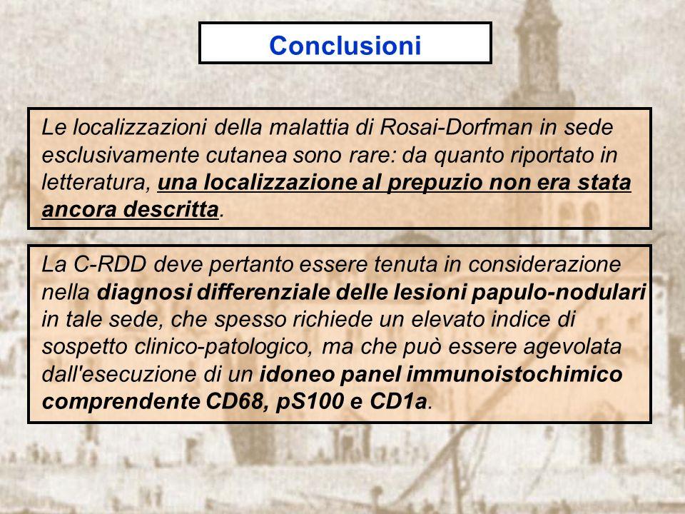 Le localizzazioni della malattia di Rosai-Dorfman in sede esclusivamente cutanea sono rare: da quanto riportato in letteratura, una localizzazione al