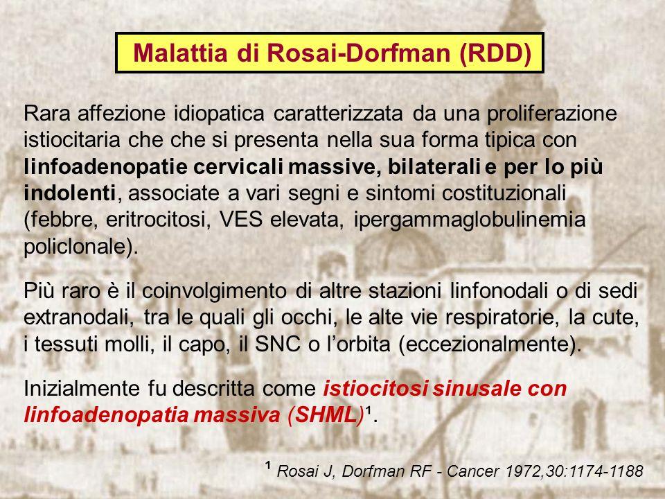 Malattia di Rosai-Dorfman (RDD) Rara affezione idiopatica caratterizzata da una proliferazione istiocitaria che che si presenta nella sua forma tipica