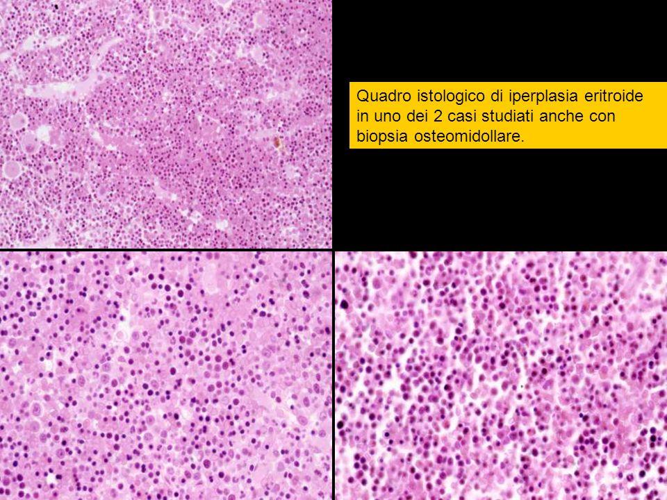 Quadro istologico di iperplasia eritroide in uno dei 2 casi studiati anche con biopsia osteomidollare.