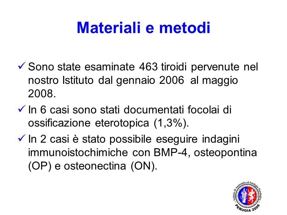 Materiali e metodi Sono state esaminate 463 tiroidi pervenute nel nostro Istituto dal gennaio 2006 al maggio 2008. In 6 casi sono stati documentati fo
