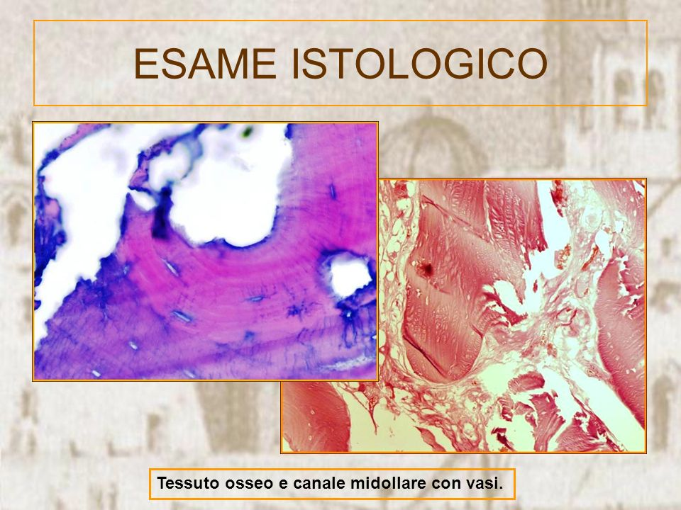 ESAME ISTOLOGICO Tessuto osseo e canale midollare con vasi.