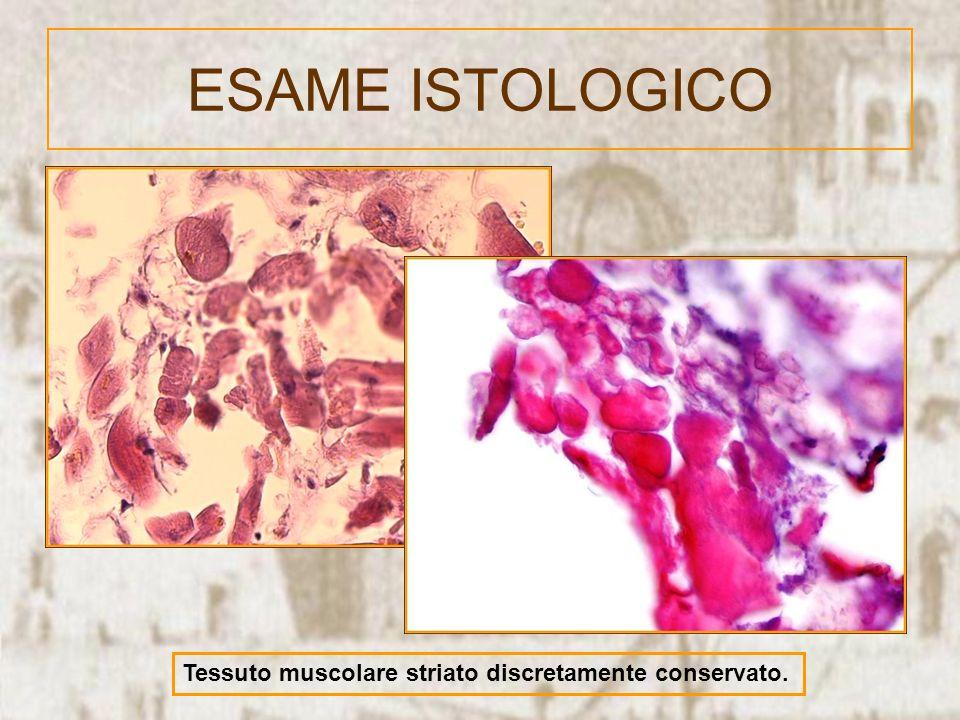 ESAME ISTOLOGICO Tessuto muscolare striato discretamente conservato.