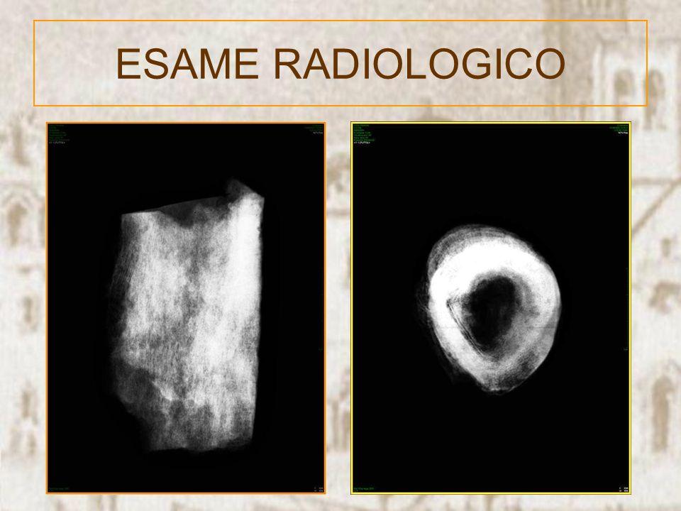 L esame istologico, per quanto di difficile valutazione, mostra marcata fibrosi e neodeposizione ossea sottoforma di sottili lamelle ossee parallele, con aspetti riferibili a modesto infiltrato infiammatorio plasmacellulare.