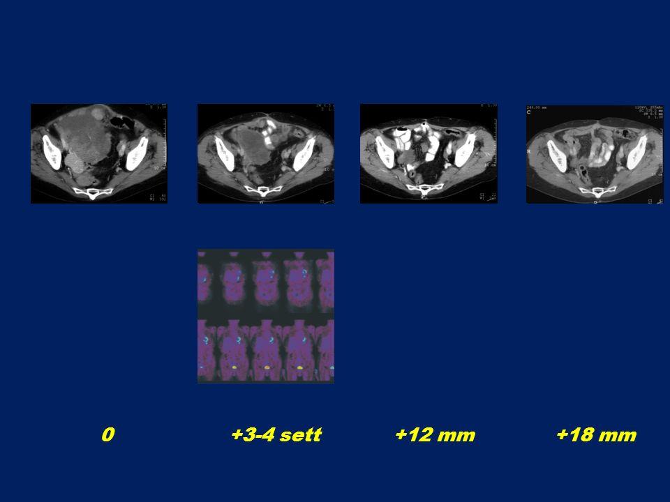 0 +3-4 sett +12 mm +18 mm
