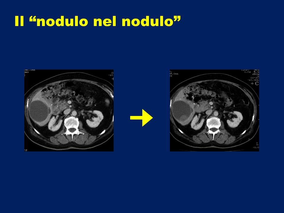 Il nodulo nel nodulo