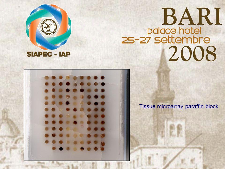 Tissue microarray paraffin block