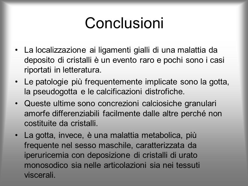 Conclusioni La localizzazione ai ligamenti gialli di una malattia da deposito di cristalli è un evento raro e pochi sono i casi riportati in letteratu
