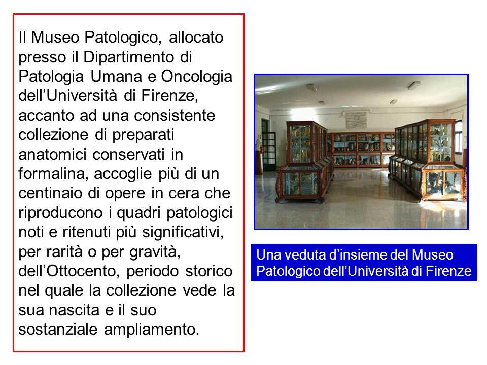 Il Museo Patologico, allocato presso il Dipartimento di Patologia Umana e Oncologia dellUniversità di Firenze, accanto ad una consistente collezione d