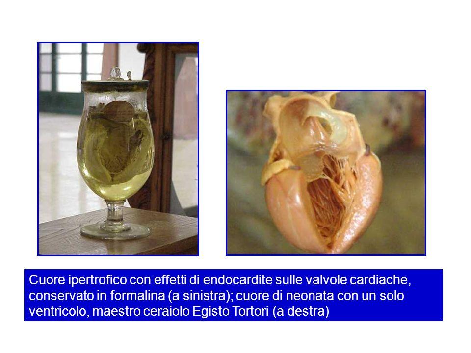 Cuore ipertrofico con effetti di endocardite sulle valvole cardiache, conservato in formalina (a sinistra); cuore di neonata con un solo ventricolo, m
