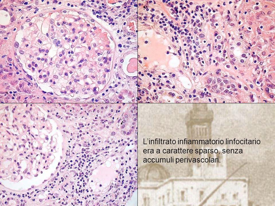 Linfiltrato infiammatorio linfocitario era a carattere sparso, senza accumuli perivascolari.