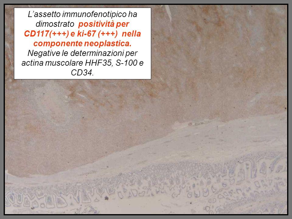 Lassetto immunofenotipico ha dimostrato positività per CD117(+++) e ki-67 (+++) nella componente neoplastica. Negative le determinazioni per actina mu