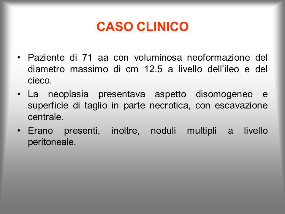 CASO CLINICO Paziente di 71 aa con voluminosa neoformazione del diametro massimo di cm 12.5 a livello dellileo e del cieco. La neoplasia presentava as