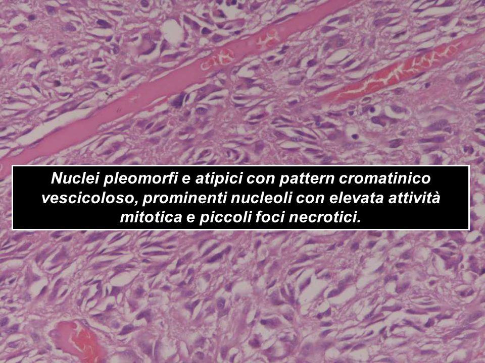 Nuclei pleomorfi e atipici con pattern cromatinico vescicoloso, prominenti nucleoli con elevata attività mitotica e piccoli foci necrotici.