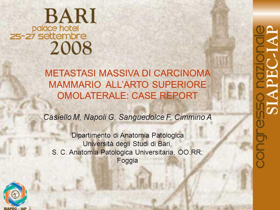 METASTASI MASSIVA DI CARCINOMA MAMMARIO ALLARTO SUPERIORE OMOLATERALE: CASE REPORT Casiello M, Napoli G, Sanguedolce F, Cimmino A Dipartimento di Anat