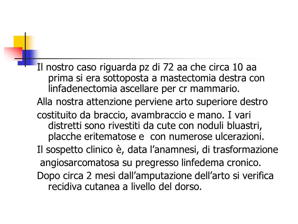 Il nostro caso riguarda pz di 72 aa che circa 10 aa prima si era sottoposta a mastectomia destra con linfadenectomia ascellare per cr mammario. Alla n