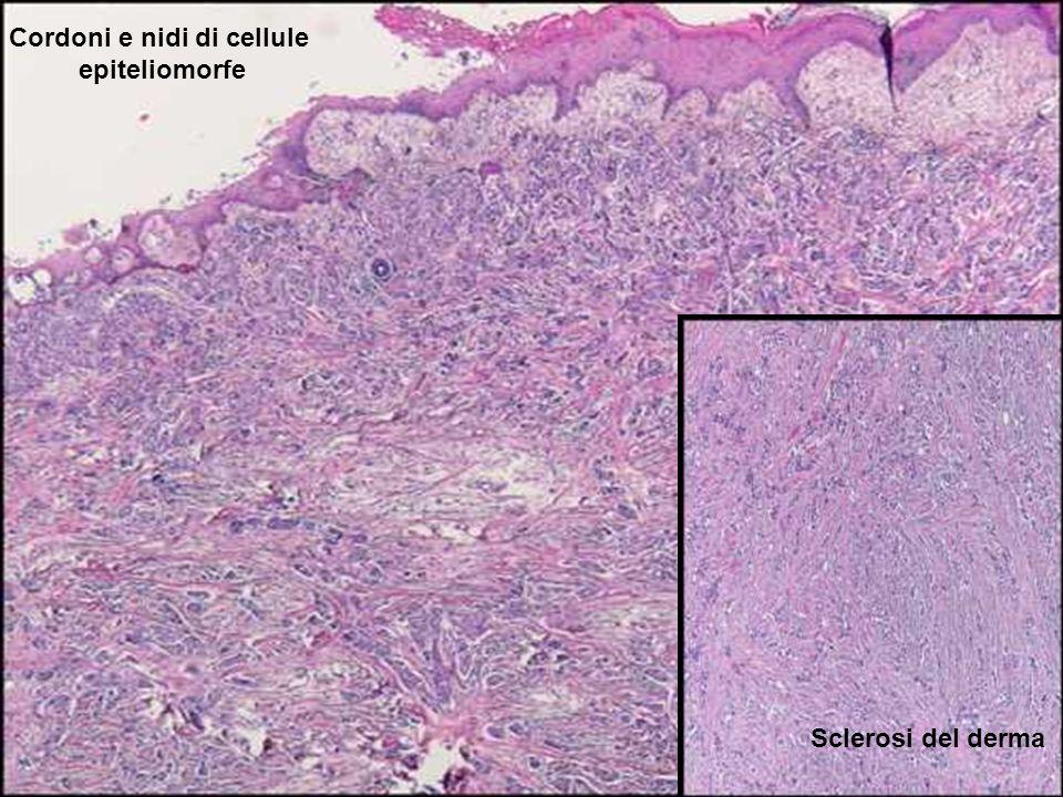 Nidi e cordoni di cellule epiteliomorfe sclerosi del derma Cordoni e nidi di cellule epiteliomorfe Sclerosi del derma