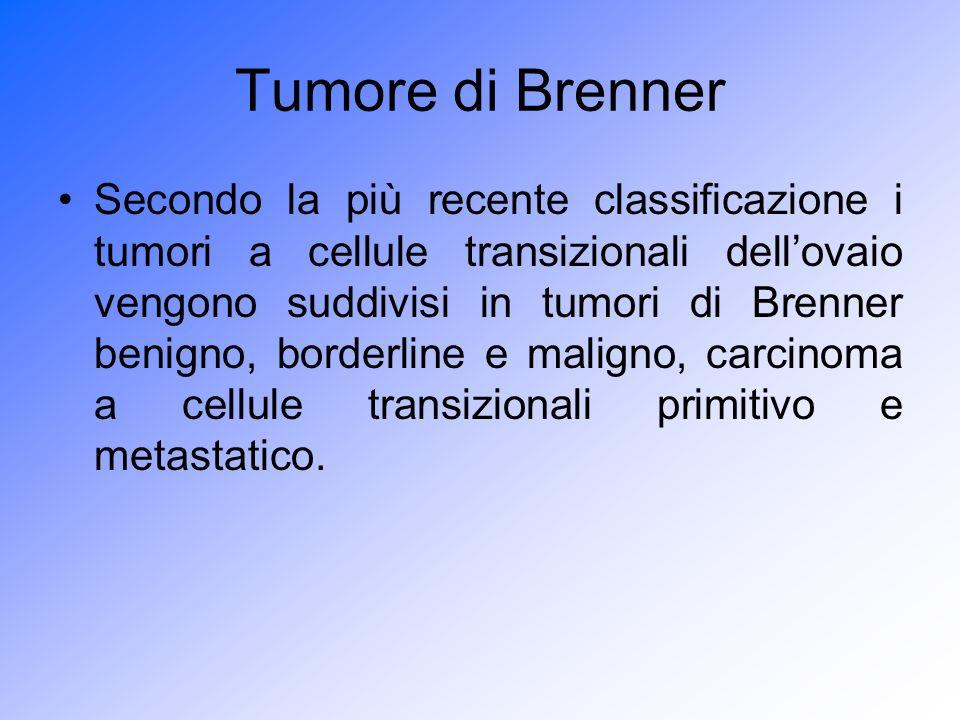 Tumore di Brenner Secondo la più recente classificazione i tumori a cellule transizionali dellovaio vengono suddivisi in tumori di Brenner benigno, bo