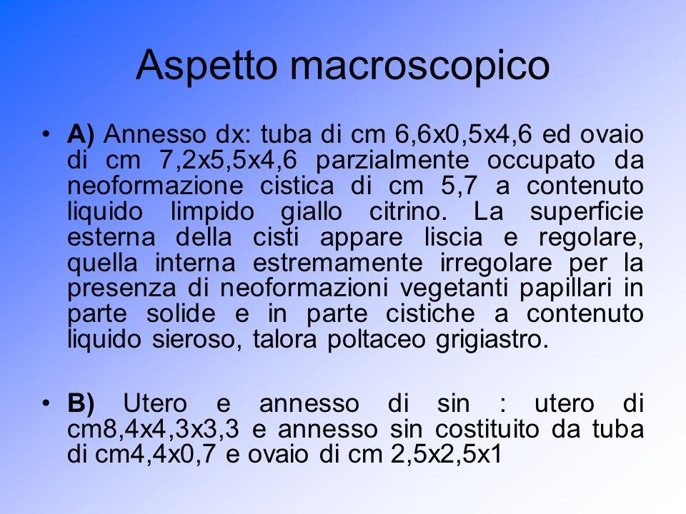 Aspetto macroscopico A) Annesso dx: tuba di cm 6,6x0,5x4,6 ed ovaio di cm 7,2x5,5x4,6 parzialmente occupato da neoformazione cistica di cm 5,7 a conte