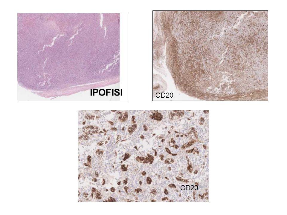 IPOFISI CD20