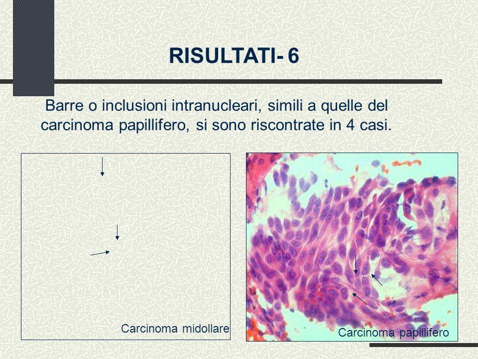 RISULTATI- 6 Barre o inclusioni intranucleari, simili a quelle del carcinoma papillifero, si sono riscontrate in 4 casi.