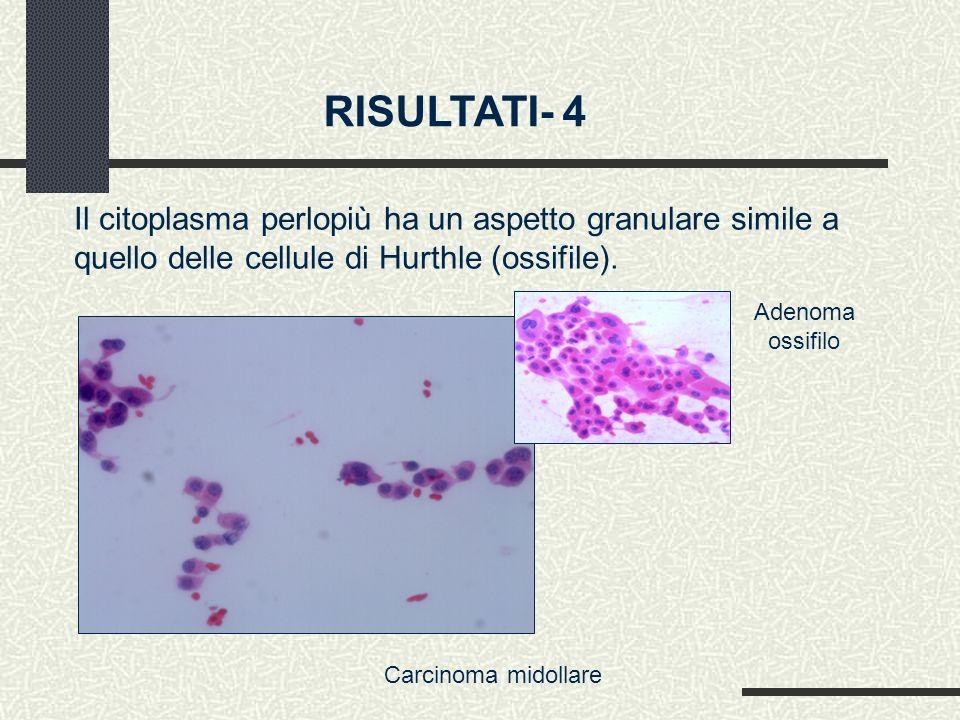 RISULTATI- 4 Il citoplasma perlopiù ha un aspetto granulare simile a quello delle cellule di Hurthle (ossifile).