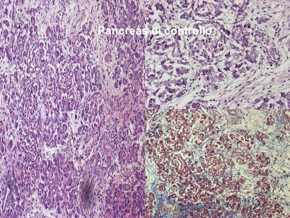 Pancreas di controllo