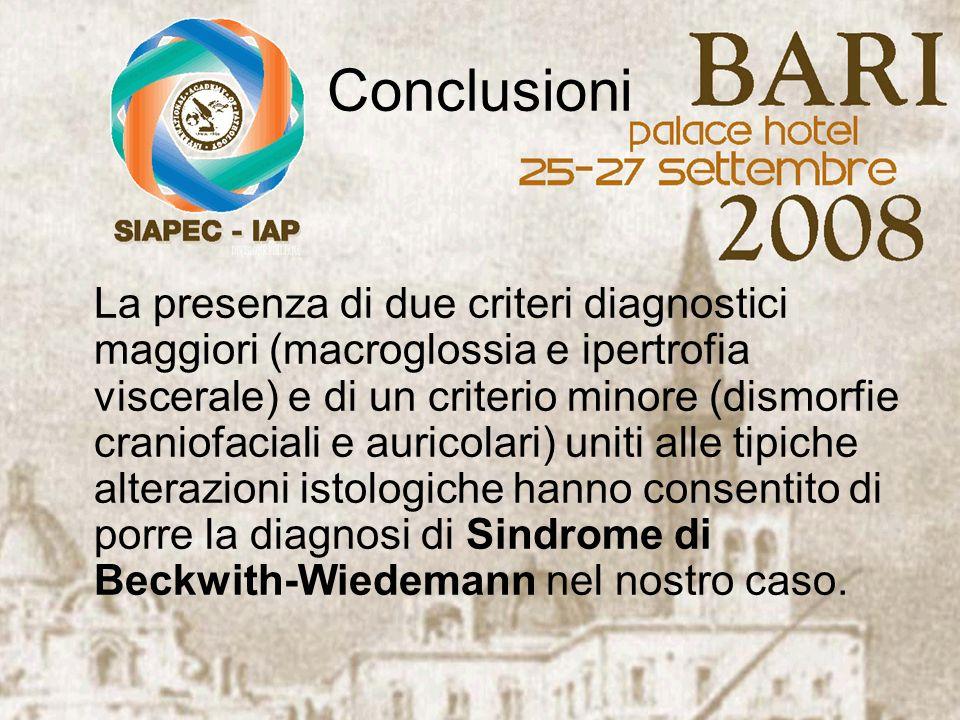 Conclusioni La presenza di due criteri diagnostici maggiori (macroglossia e ipertrofia viscerale) e di un criterio minore (dismorfie craniofaciali e a